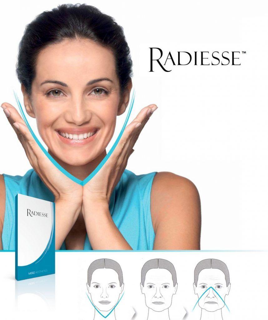 Radiesse lifting