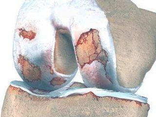 artrosis rodilla