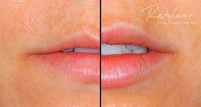 Aumento de labios antes y después