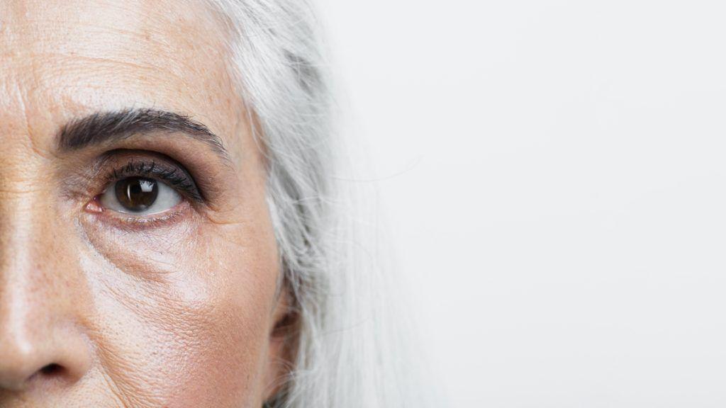 Ojeras en mujer adulta