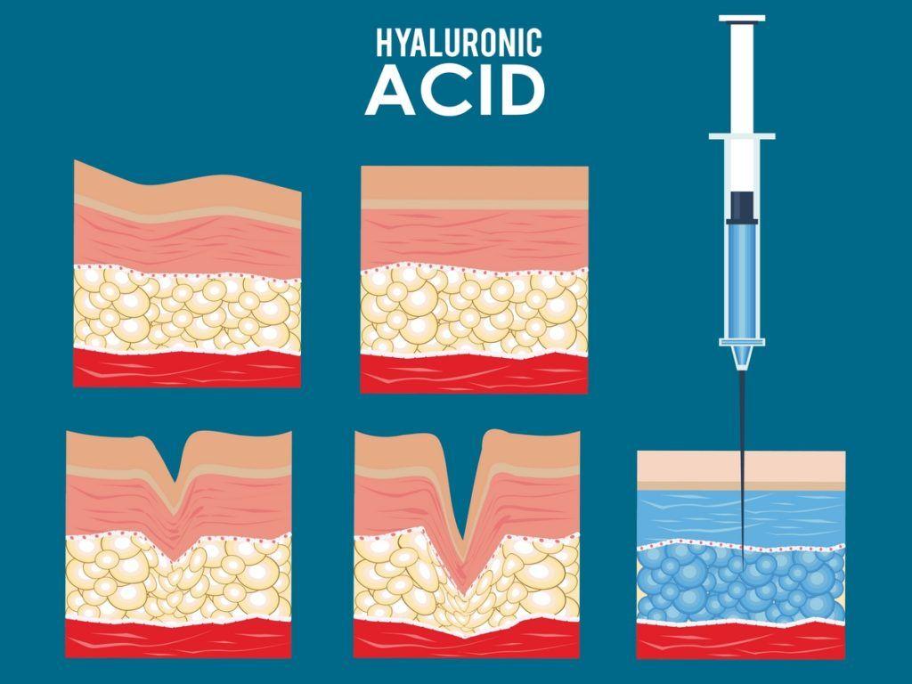 acido hialuronico efectos a largo plazo