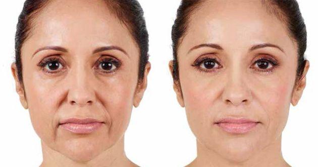 ácido hialurónico antes y después resultados