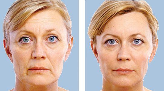 Resultados antes y después ácido hialurónico